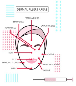 where dermal fillers can be used